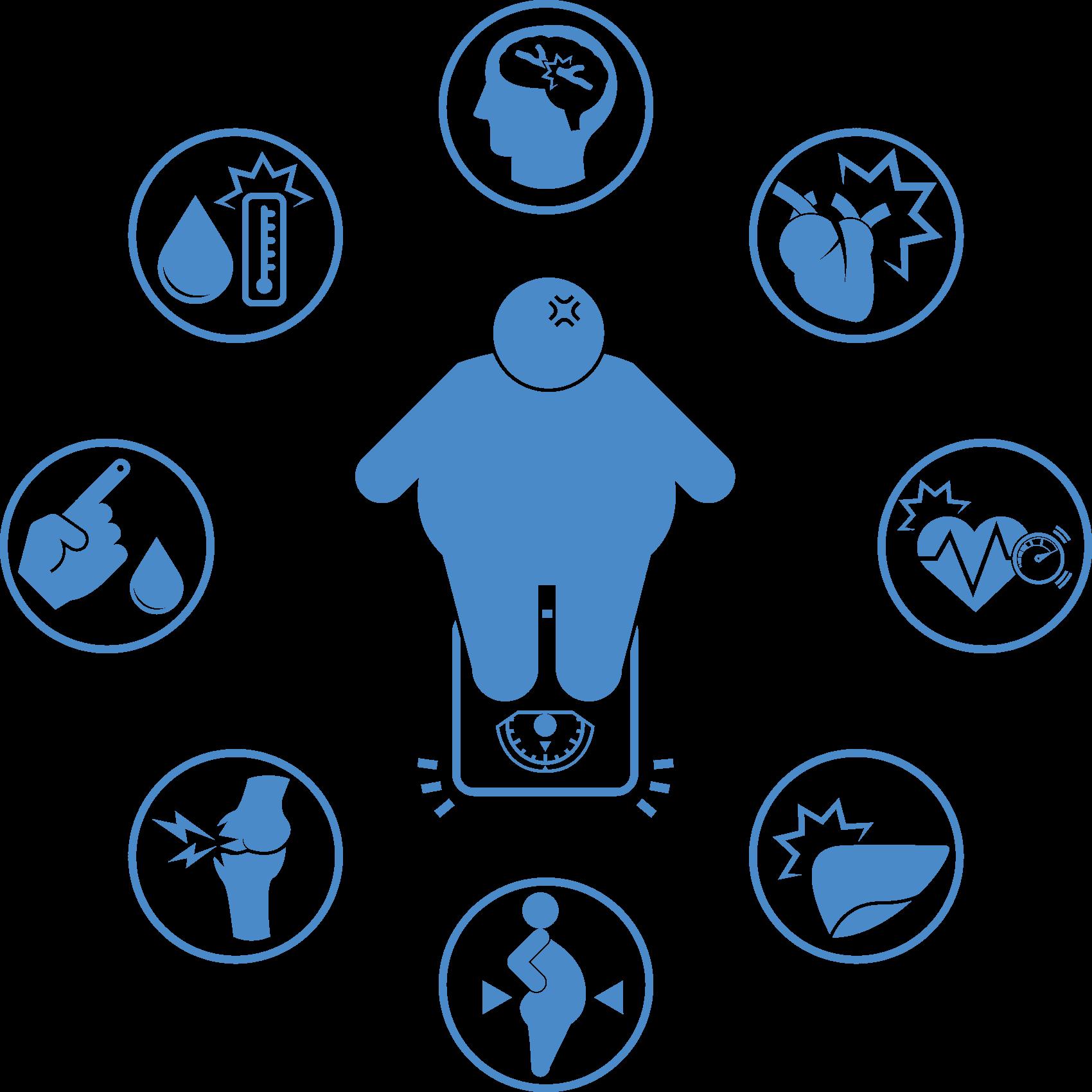 Preguntas y respuestas frecuentes sobre el tratamiento de la Obesidad